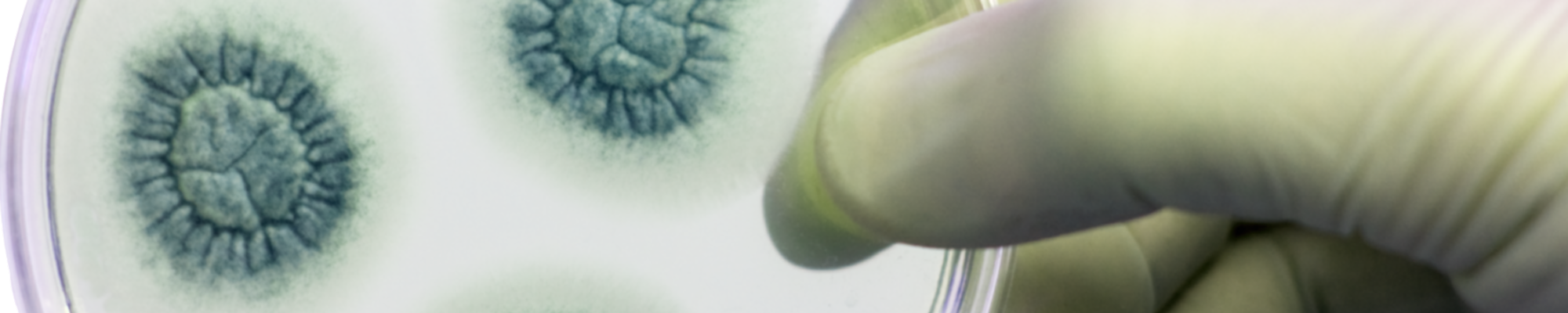 Placa Petri cepas - MicroBioSpain