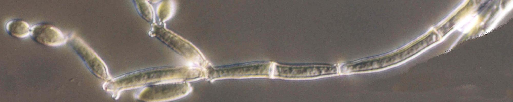 Cladosporium - MicroBioSpain